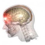 Tramautic_Brain_Injury